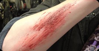 abrasion de la peau lors d'un accident de moto